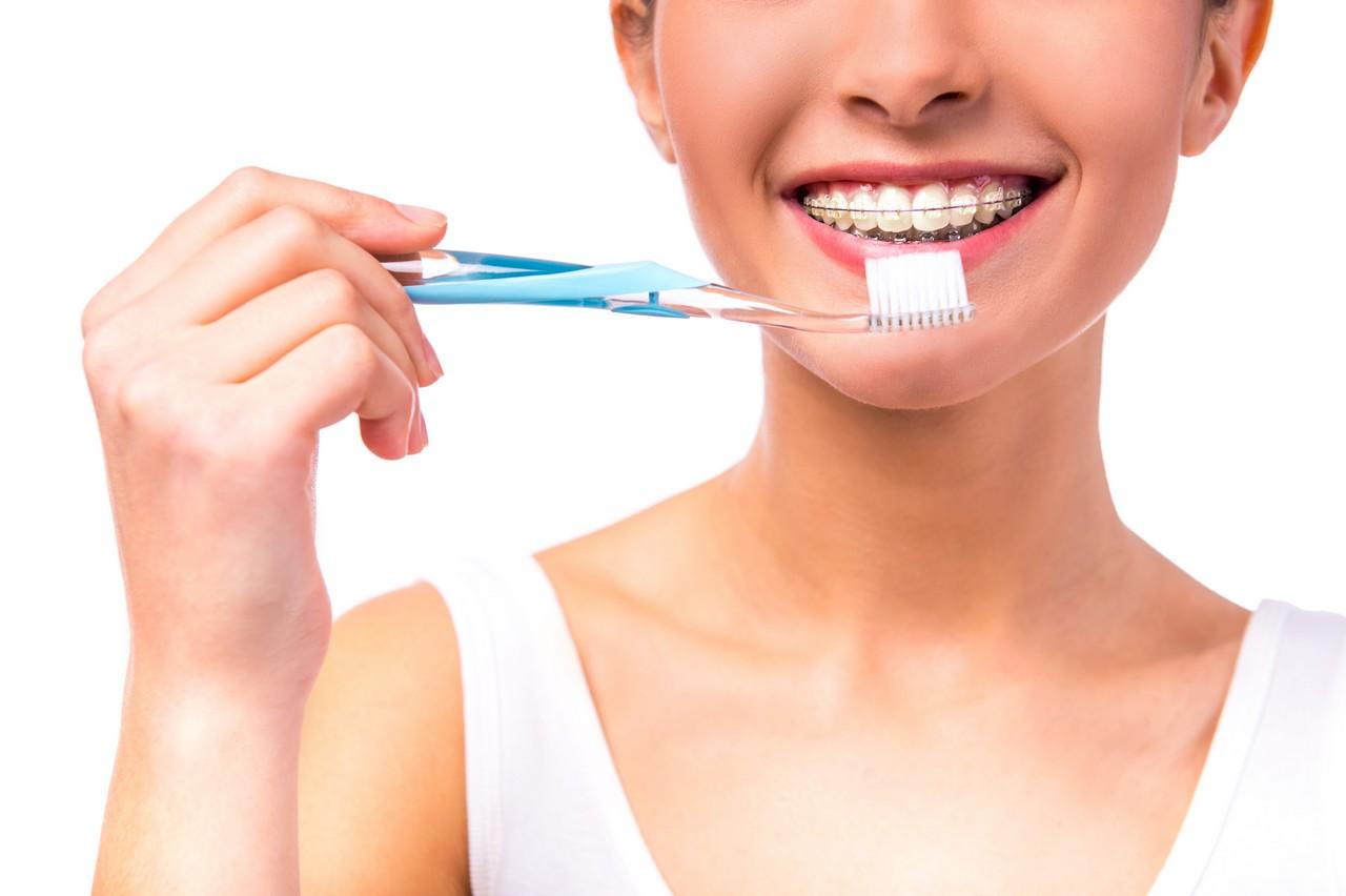 выравнивание зубов-4