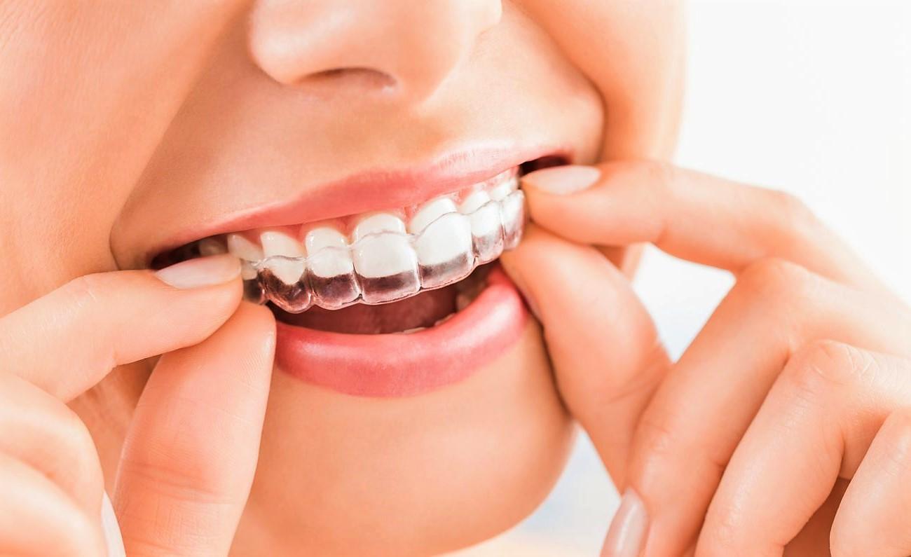 выравнивание зубов-3