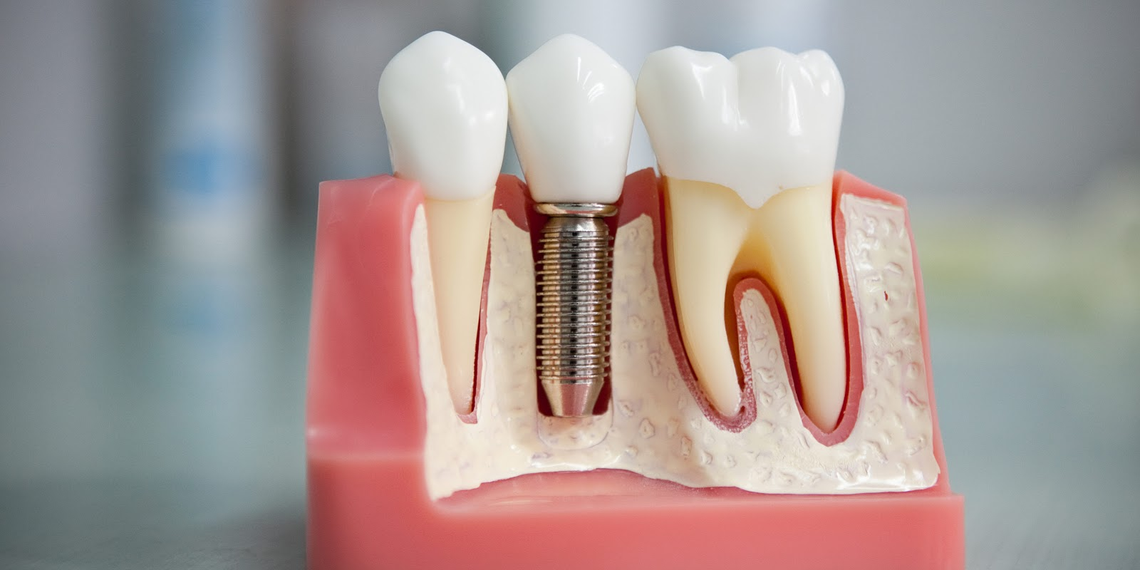 импланты для зубов