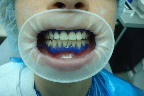 Как в стоматологии применяют жидкий коффердам