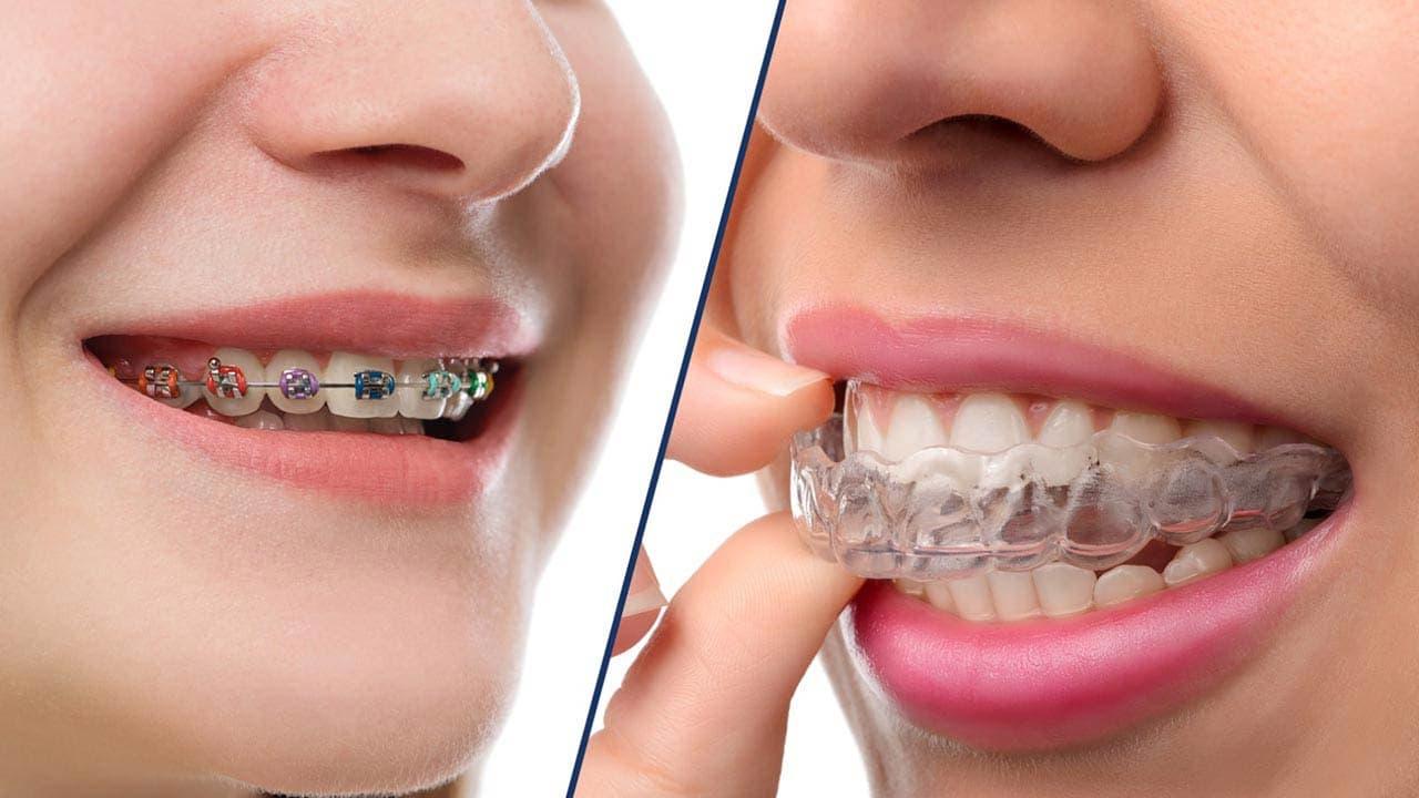 ортодонтия-2