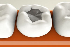 Зубная пломба схематическое изображение