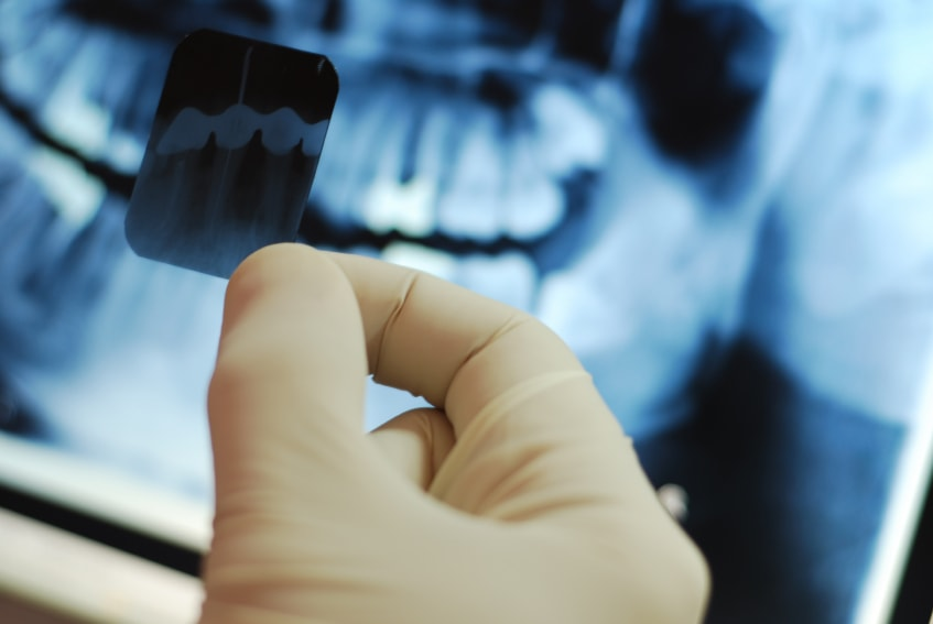 ренген зубов