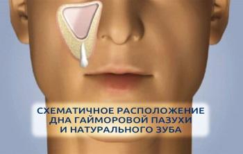 синус-лифтинг в стоматологии что это такое