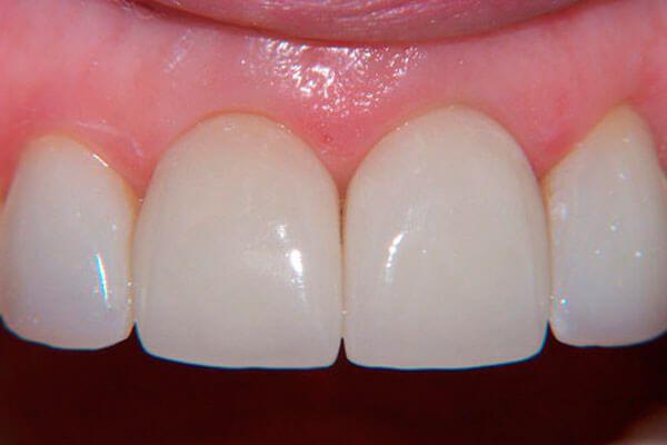 подбор зубных коронок