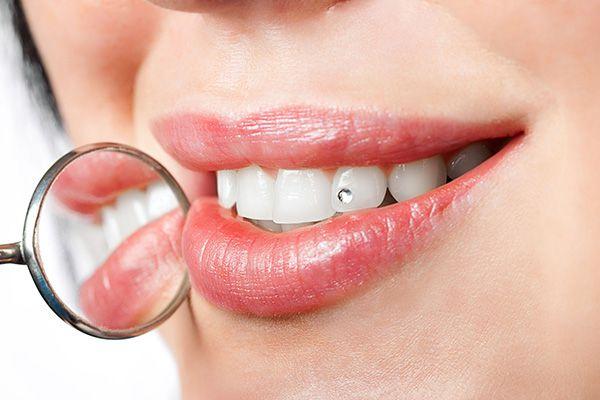 популярные украшения для зубов