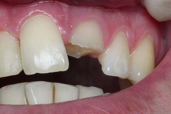 Процедура наращивания зубов