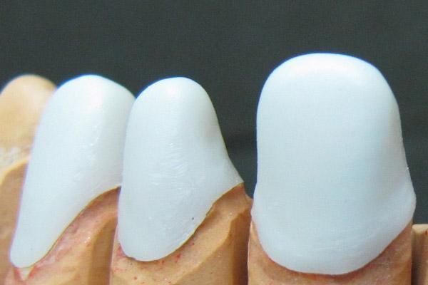 Особенности безметалловой керамики