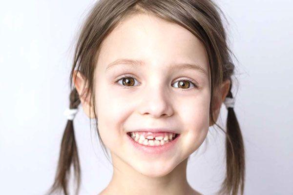 Важность серебрения молочных зубов