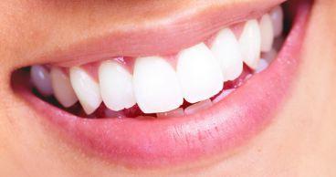 Лечение зубного камня