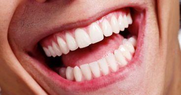 Восстановление зубов за 7 дней