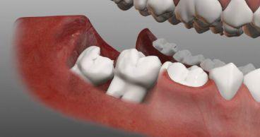 Зачем и почему нужно удалять зубы мудрости?