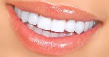 Щель между зубами - как избавиться