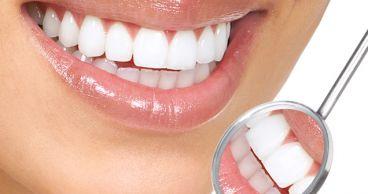 Как вы отбеливаете свои зубы?