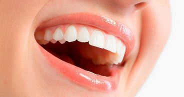 Как предупредить зубной кариес