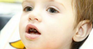 Преимущества серебрения молочных зубов