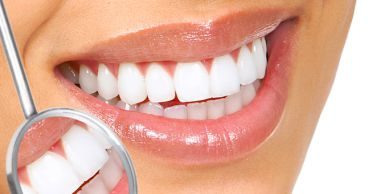 Зачем нужна профессиональная чистка зубов