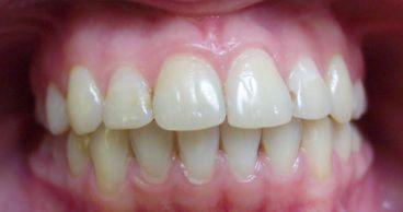 Неправильный прикус зубов