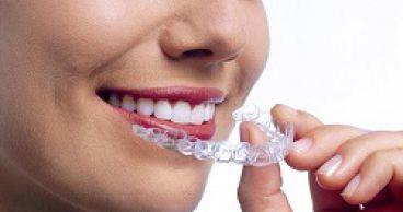 Как выравнивают зубы?