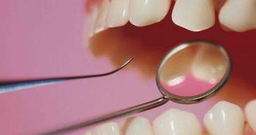 Пятна и дефекты на зубной эмали