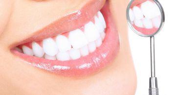 Отбеливание зубов - миф или реальность